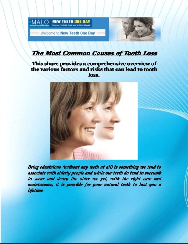 An Overview Of The Most Popular: The Most Common Causes Of Tooth Loss
