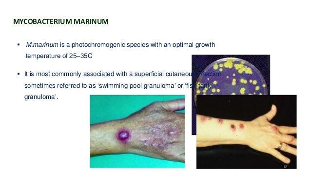 The Mycobacterium Avium Complex And Slowly Growing Mycobacterium
