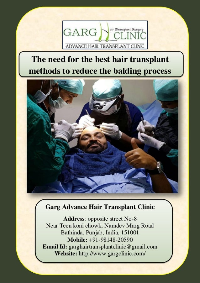 The need for the best hair transplant methods to reduce the balding p… - 웹