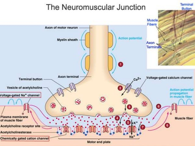The neuromuscular junction disorders including myasthenia ...