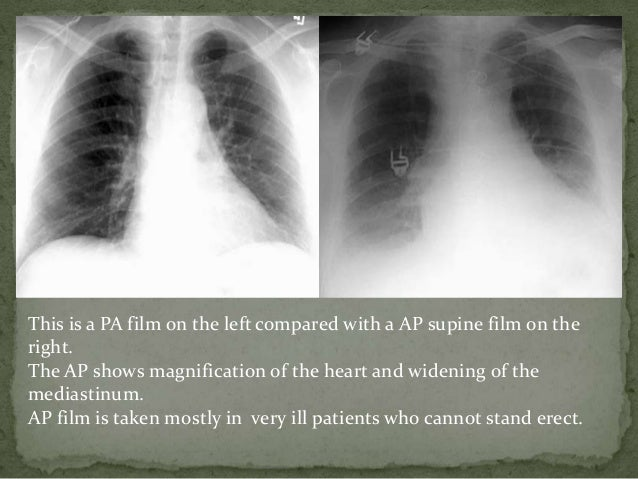 The normal chest BY Dr Nikhil Bansal Pleural Effusion X Ray Lateral