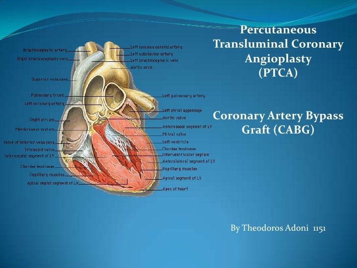 PercutaneousTransluminal Coronary Angioplasty <br />(PTCA)<br />Coronary Artery Bypass Graft (CABG)<br />By Theodoros Adon...