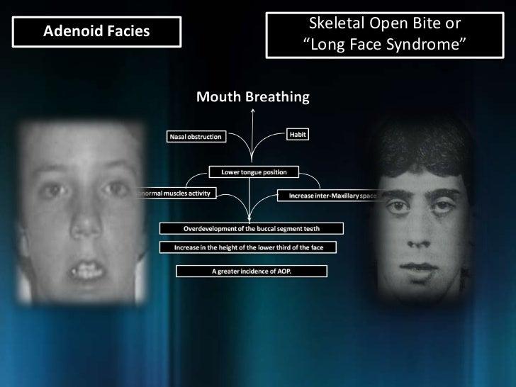 adenoid facies skeletal open bite or long face syndrome 19