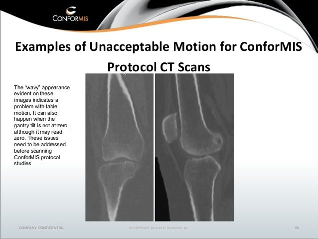 Customized Partial & Total Knee Replacements | Conformis