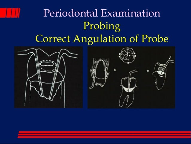 Parameter on comprehensive periodontal examination. American Academy of Periodontology.