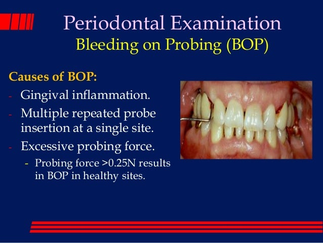 Periodontal screening and recording step by step guide