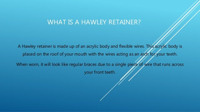The Price Of Hawley Retainers In The Philippines
