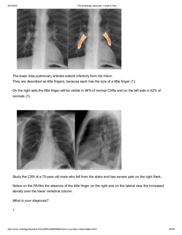 The radiology assistant chest x ray - basic interpretation