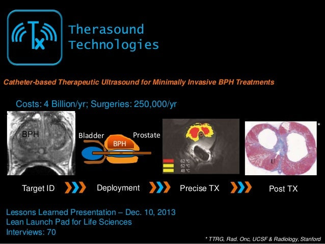 Tx  Therasound Technologies  Catheter-based Therapeutic Ultrasound for Minimally Invasive BPH Treatments  Costs: 4 Billion...
