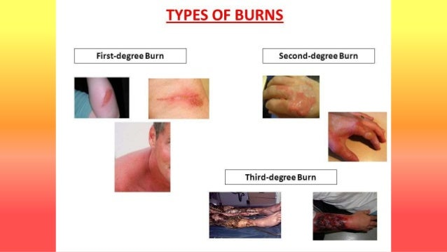 Thermal burns with anatomy of skin