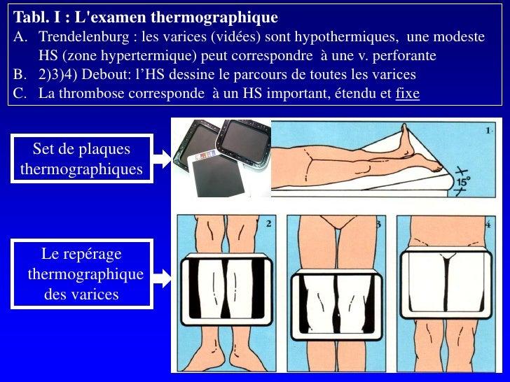 Tabl. I : L'examen thermographique A. Trendelenburg : les varices (vidées) sont hypothermiques, une modeste    HS (zone hy...