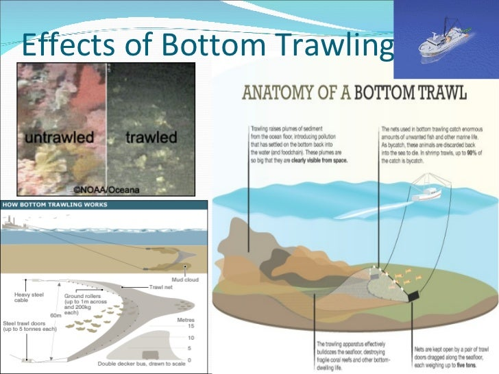 Anatomy Of Bottom Choice Image Human Body Anatomy