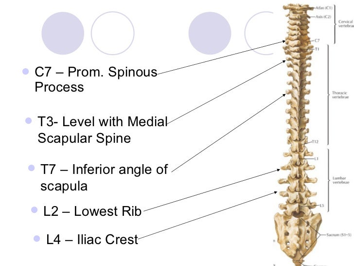the spine & spinal cord, Sphenoid