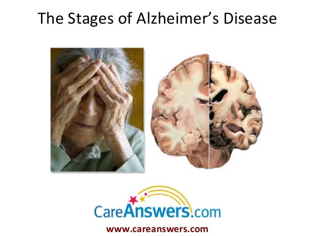 The Stages of Alzheimer's Disease         www.careanswers.com