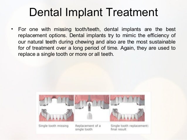 Best options to replace missing teeth