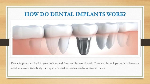 The Top Types of Dental Implants You Need to Know