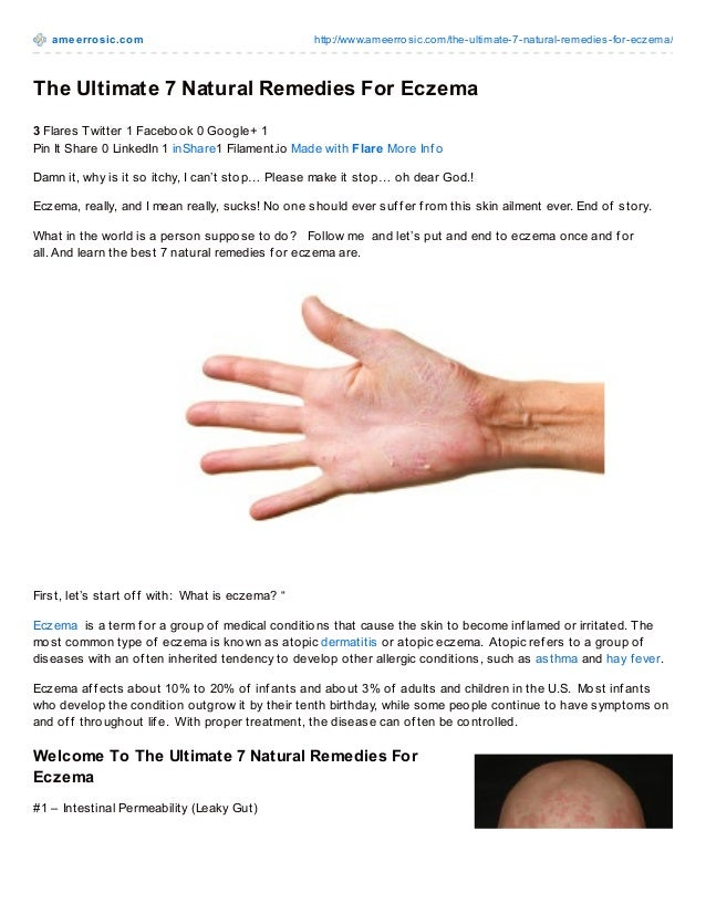am e e rro sic.co m  http://www.ameerro sic.co m/the-ultimate-7-natural-remedies-fo r-eczema/  The Ultimate 7 Natural Reme...