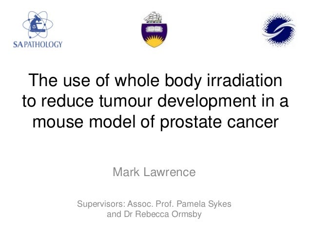 The use of whole body irradiation to reduce tumour development in a mouse model of prostate cancer Mark Lawrence Superviso...