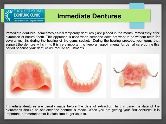 The west island denture clinic solutioingenieria Image collections
