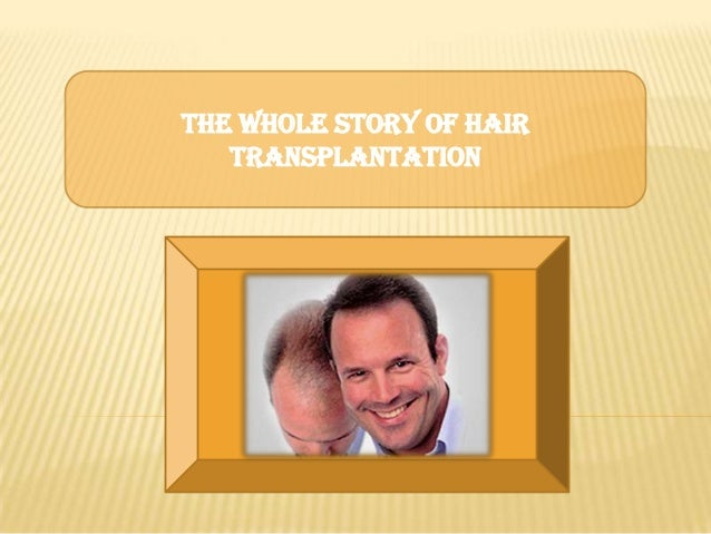 The Whole Story of Hair Transplantation