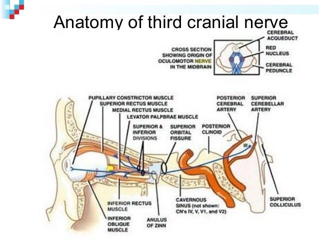 Case Presentation Third Nerve Palsy