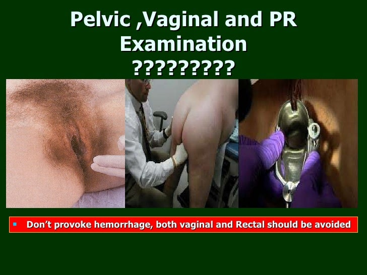Sorry, vaginal pain and pelvic exam likely. Most