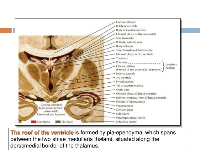 Third Ventricle Surgical Anatomy And Approaches
