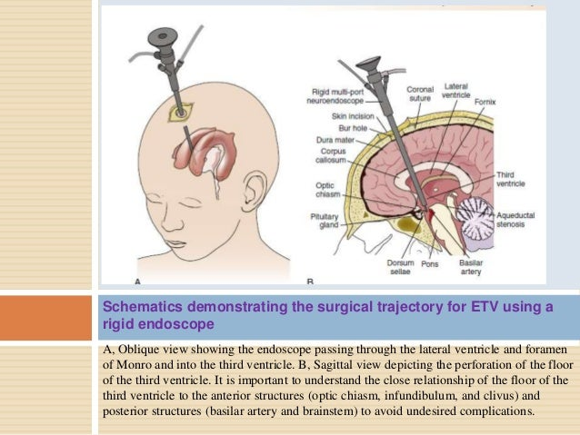 3rd ventricle anatomy