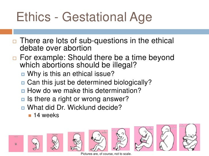 abortion ethical issue The reason for the cultural divide ignited by the roe v wade decision is not necessarily that people have intractable opinions instead, the issue of abortion is a.