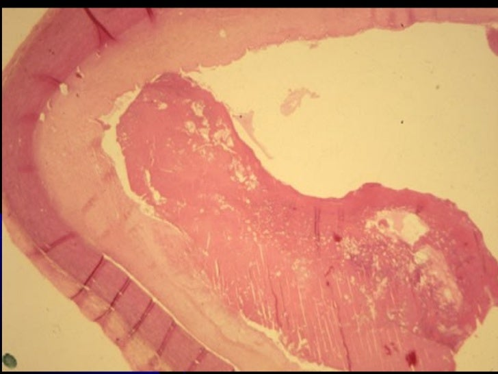 Anatomie 1 cuisse ost ologie myologie for Anatomie du meuble