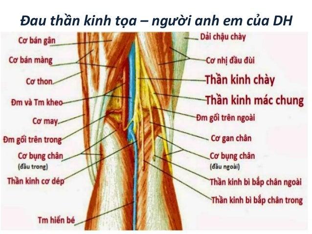 Đau thần kinh tọa – người anh em của DH • Dây TK tọa gồm 2 phần: TK chày: L4,L5, S1, S2, S3 TK mác chung: L45, S12 • Đườ...