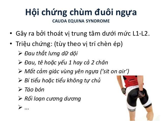 Hội chứng chùm đuôi ngựa CAUDA EQUINA SYNDROME • Gây ra bởi thoát vị trung tâm dưới mức L1-L2. • Triệu chứng: (tùy theo vị...