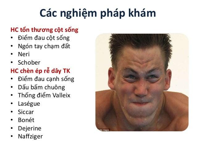 Các nghiệm pháp khám HC tổn thương cột sống • Điểm đau cột sống • Ngón tay chạm đất • Neri • Schober HC chèn ép rễ dây TK ...