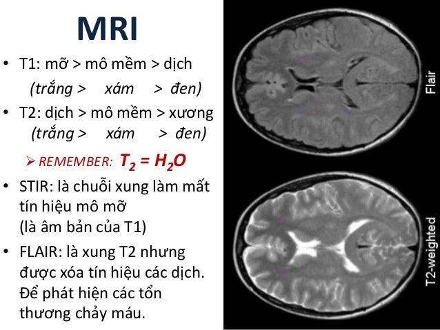 MRI • T1: mỡ > mô mềm > dịch (trắng > xám > đen) • T2: dịch > mô mềm > xương (trắng > xám > đen) REMEMBER: T2 = H2O • STI...