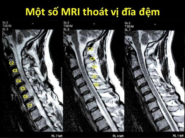 Một số MRI thoát vị đĩa đệm T2W L5-S1 disc herniation L4-L5discherniation C2 C3 C4 C5 C6 C7 C2 C3 C4 C5 C6
