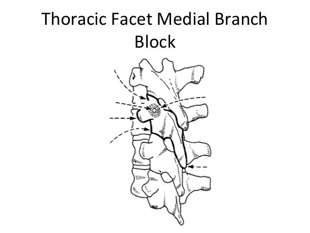 Thoracic Interventions Ppt
