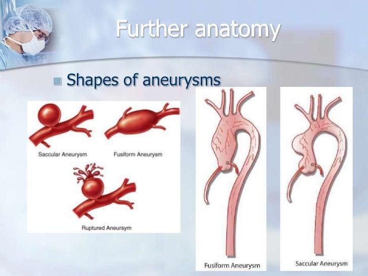 Thoracic aortic aneurysm Slide 3