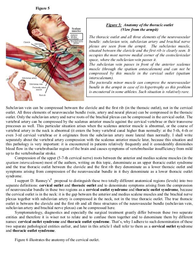 Thoracic Outlet Syndrome: Anatomy, Symptoms, Diagnostic Evaluation an…