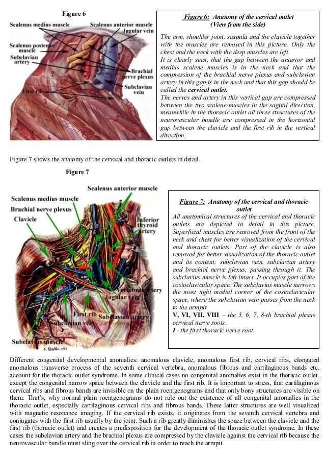 Thoracic Outlet Syndrome Anatomy Symptoms Diagnostic