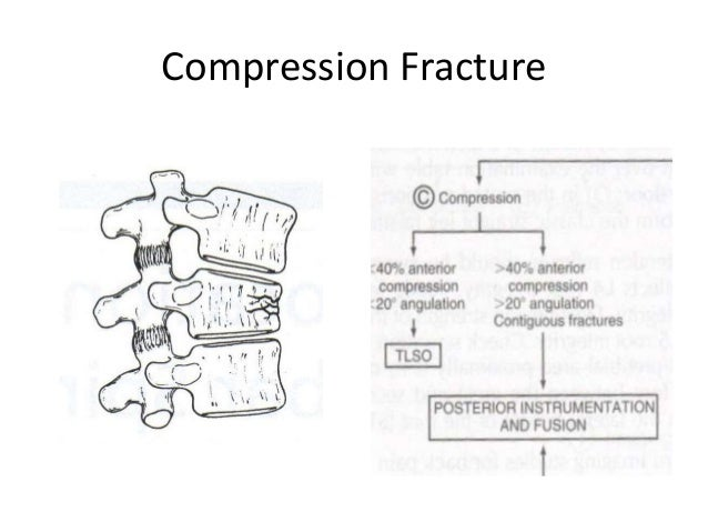 l1 compression fracture icd 10 code
