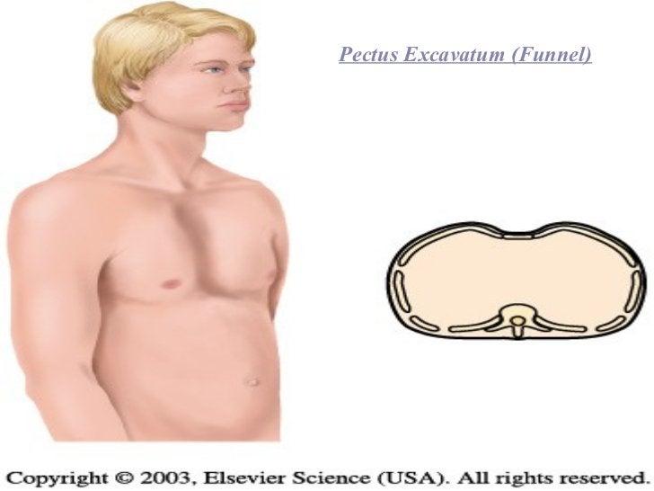 Pectus Excavatum (Funnel)