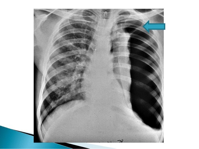 Thoracostomy indications and options