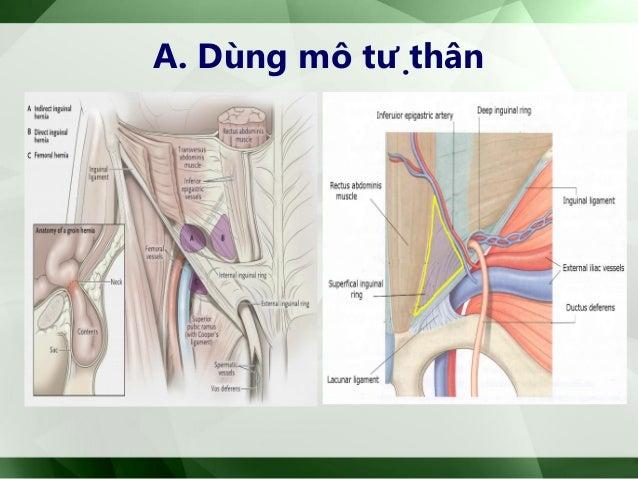 B. Dùng mảnh ghép nhân tạo • Ưu điểm: - Không gây căng - > ít đau, phục hồi nhanh - > lành sẹo tốt, ít tái phát - Tạo lớ...