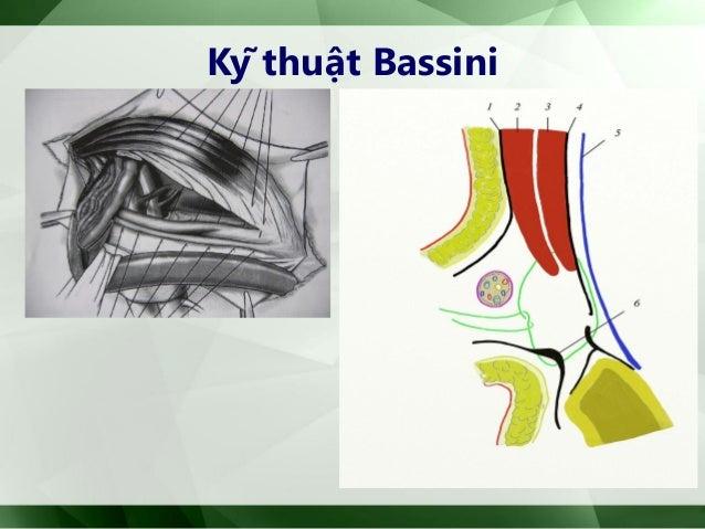 1. Mổ mở: Kỹ thuật Lichtenstein