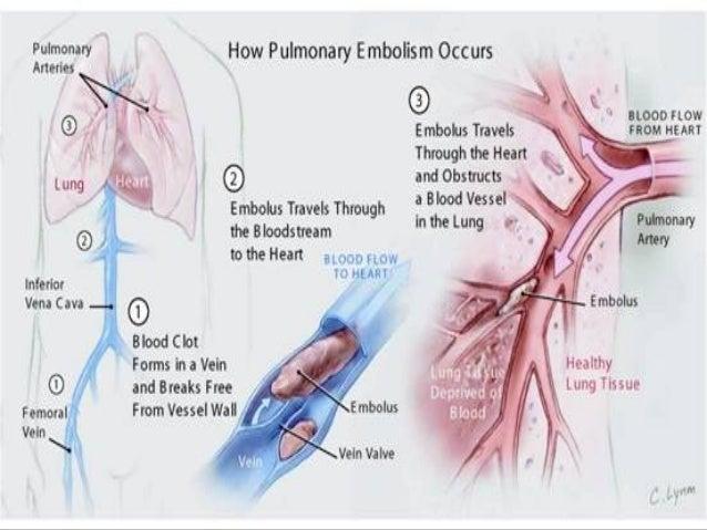 13 Common Risk Factors For Pulmonary Embolism