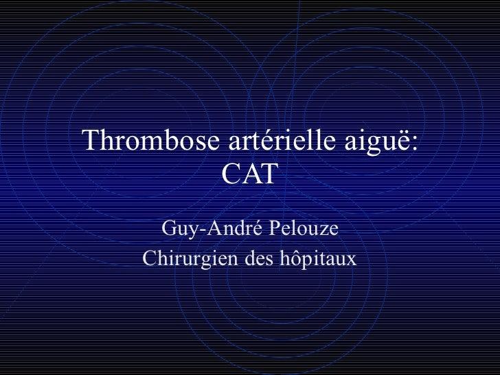 Thrombose artérielle aiguë: CAT Guy-André Pelouze Chirurgien des hôpitaux