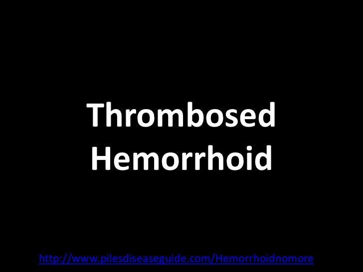 Thrombosed Hemorrhoids