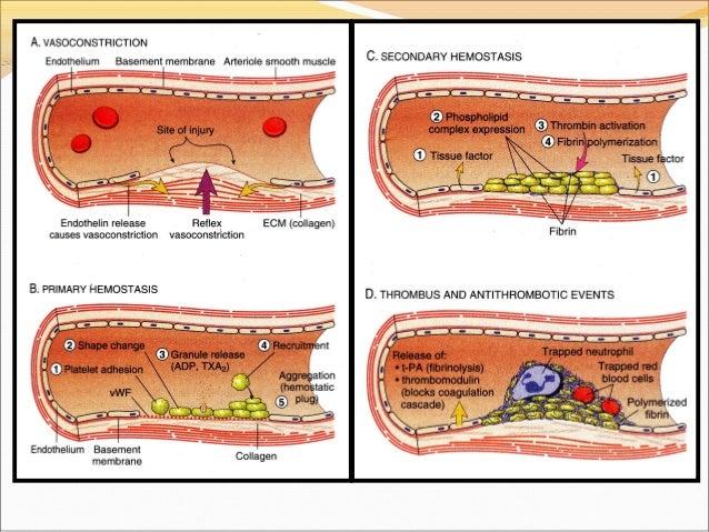 Thrombosis dr shubhangi v agale for Cardiac mural thrombi