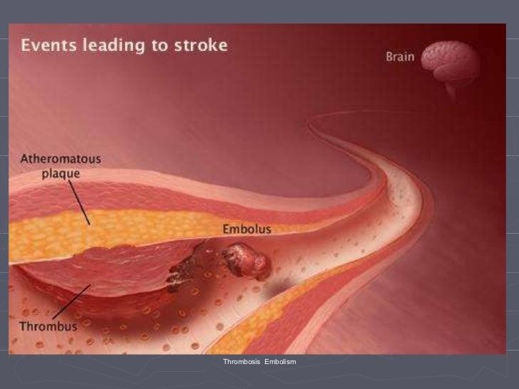 Phlebitis - Causes, Pictures, Symptoms, Treatment ...