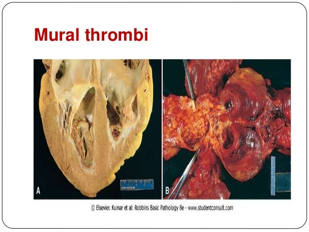 Thrombosis embolism and infarction for Cardiac mural thrombi
